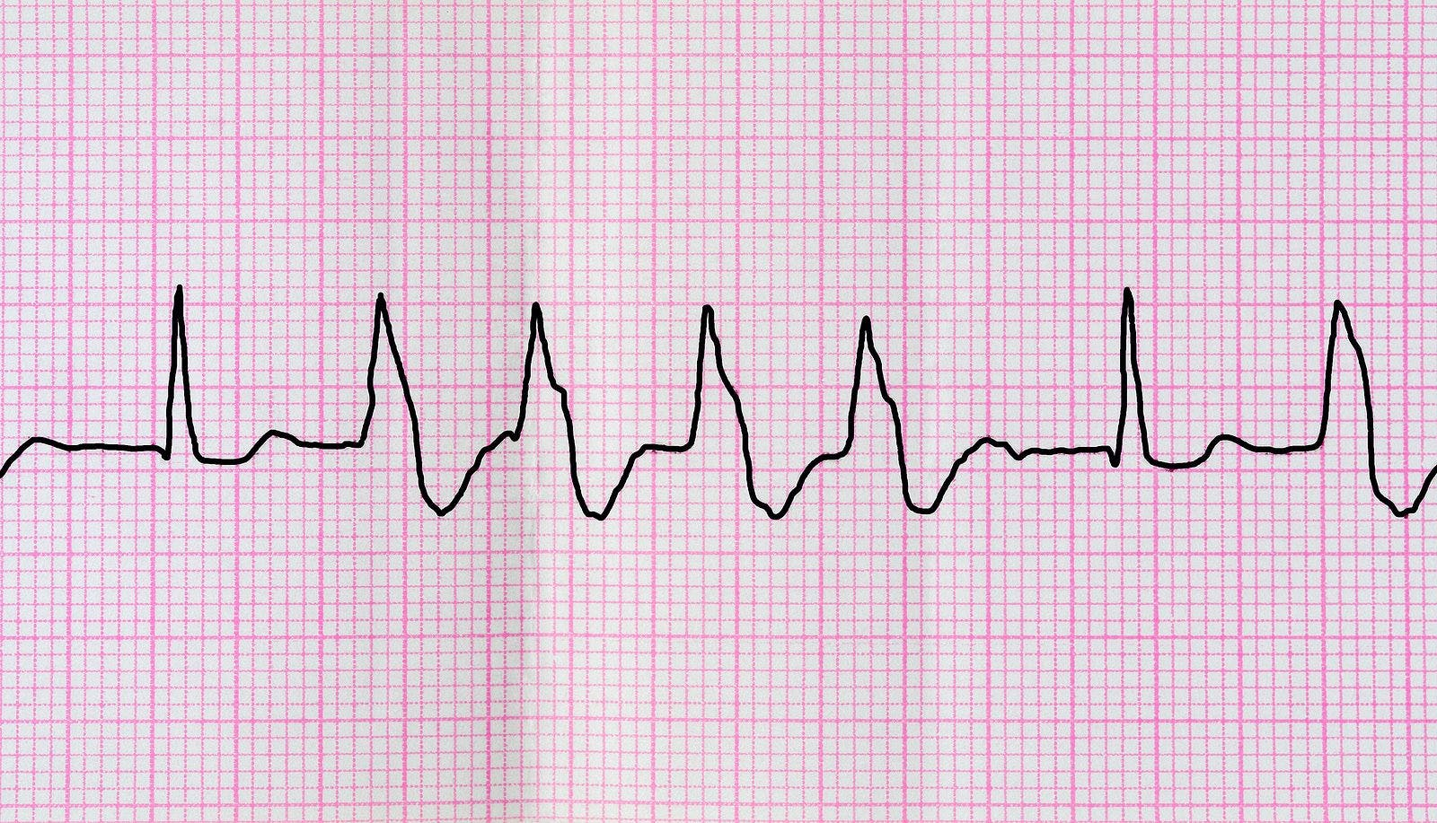 Emergency Cardiology. Tape ECG with group ventricular extrasystoles