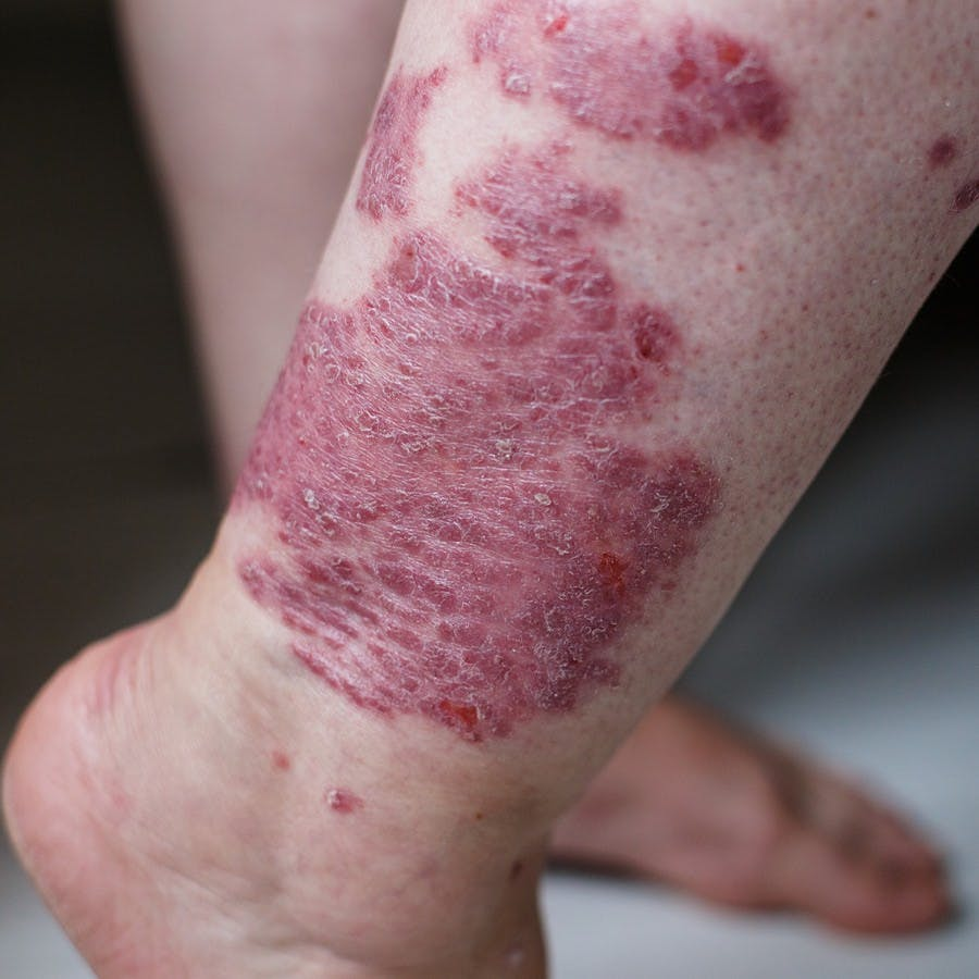 Close up ill allergic rash, eczema skin of patient , atopic dermatitis symptom skin detail texture , Fungus of skin , The concept dermatology, treatment. Red spots on psoriasis skin. Feet of a woman