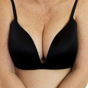 breasts and bra
