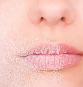dry lips with sand on them