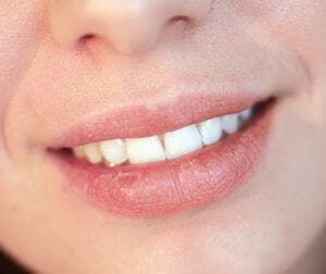 close up of dry lips