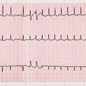 ECG of A-Fib, atrial fibrillation