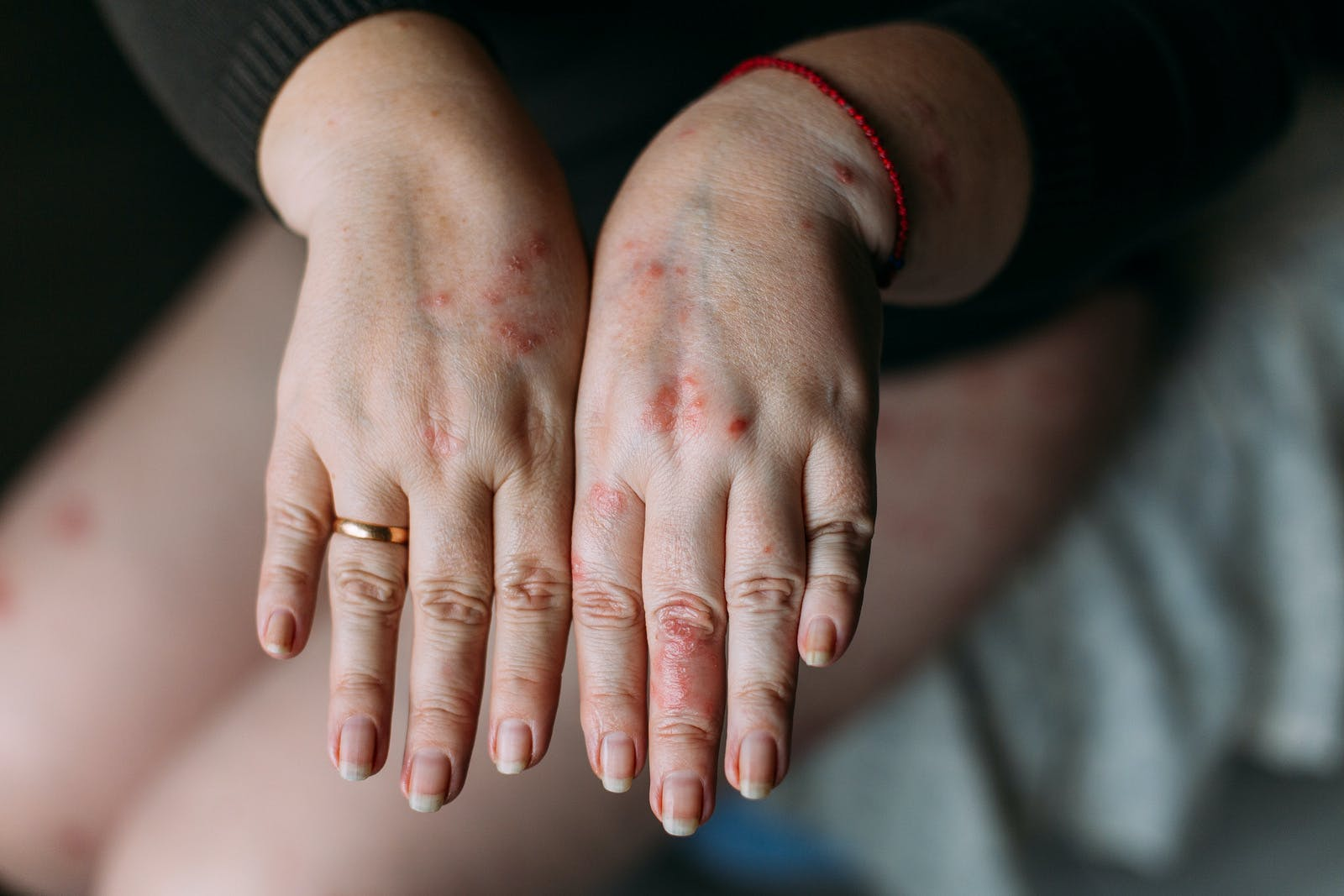 The problem with many people – eczema on hand.