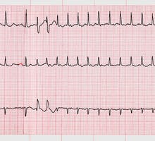 An electrocardiogram with evidence of atrial fibrillation, irregular heart rhythm