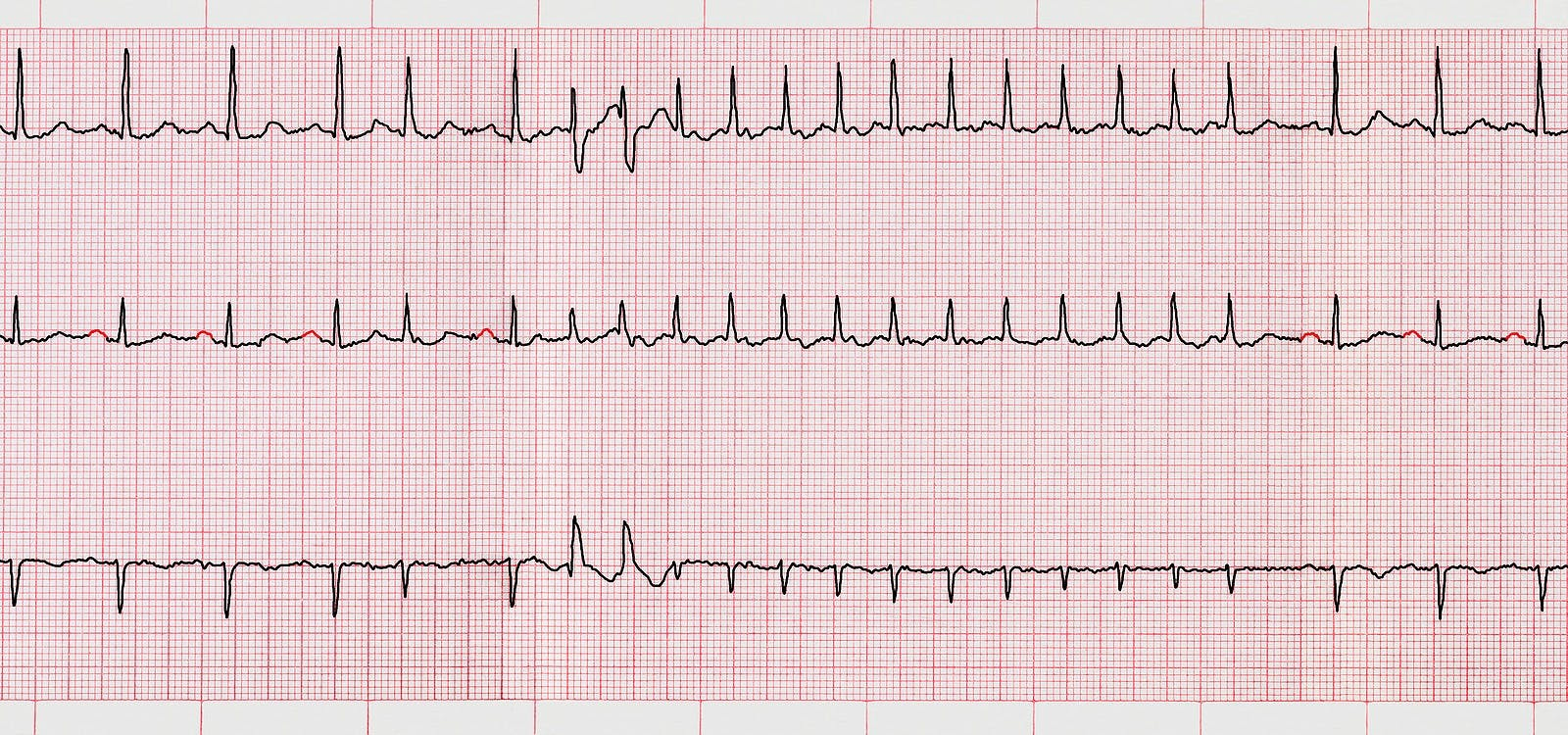 An electrocardiogram with evidence of atrial fibrillation