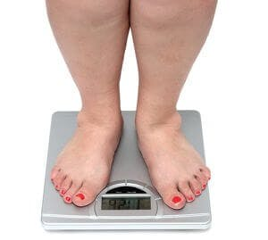 Obese obesity overweight weight loss
