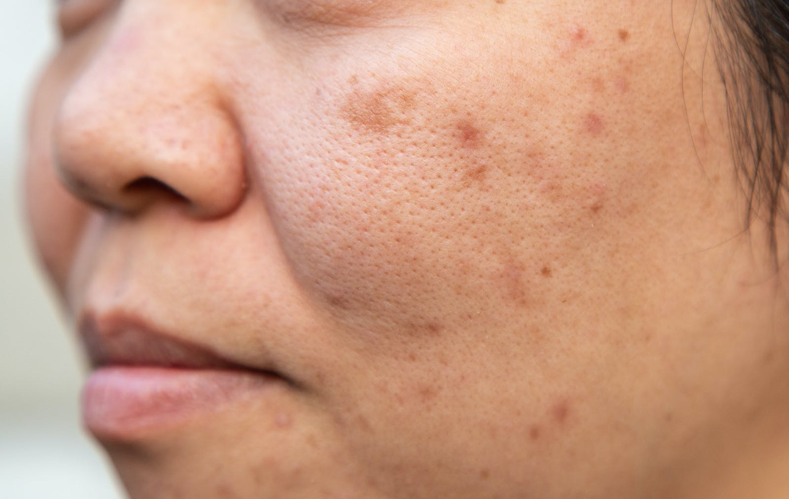 middle aged woman with stubborn blemishes on her cheeks