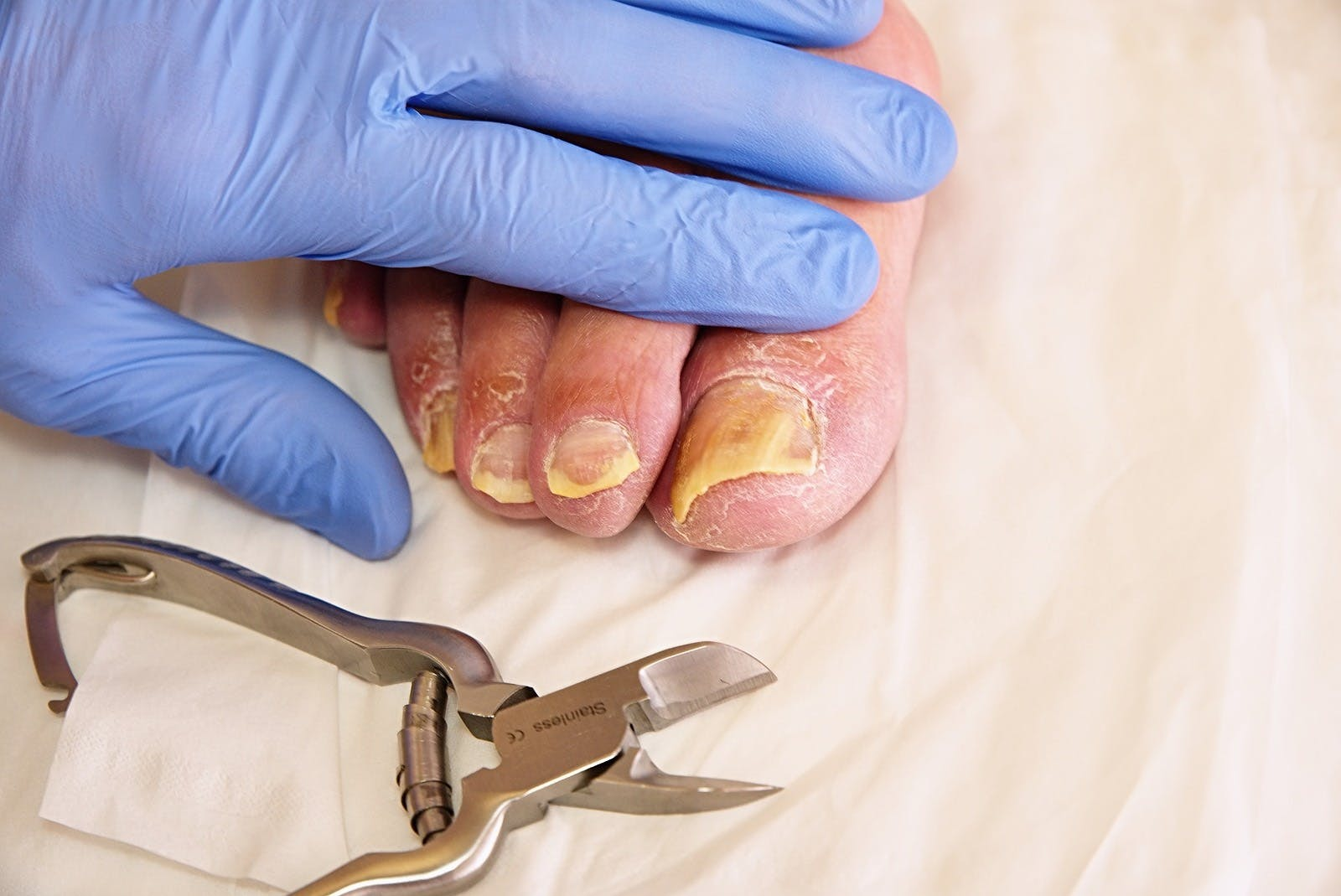 Fungus on the toes nails. Twisted toes on the foot with calluses.  Hallux rigidus tends to affect males foot.