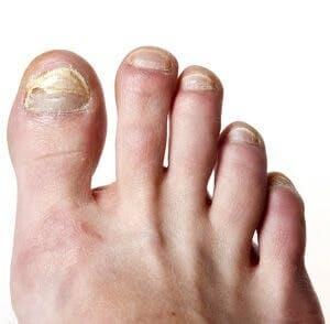 Toenail fungus foot