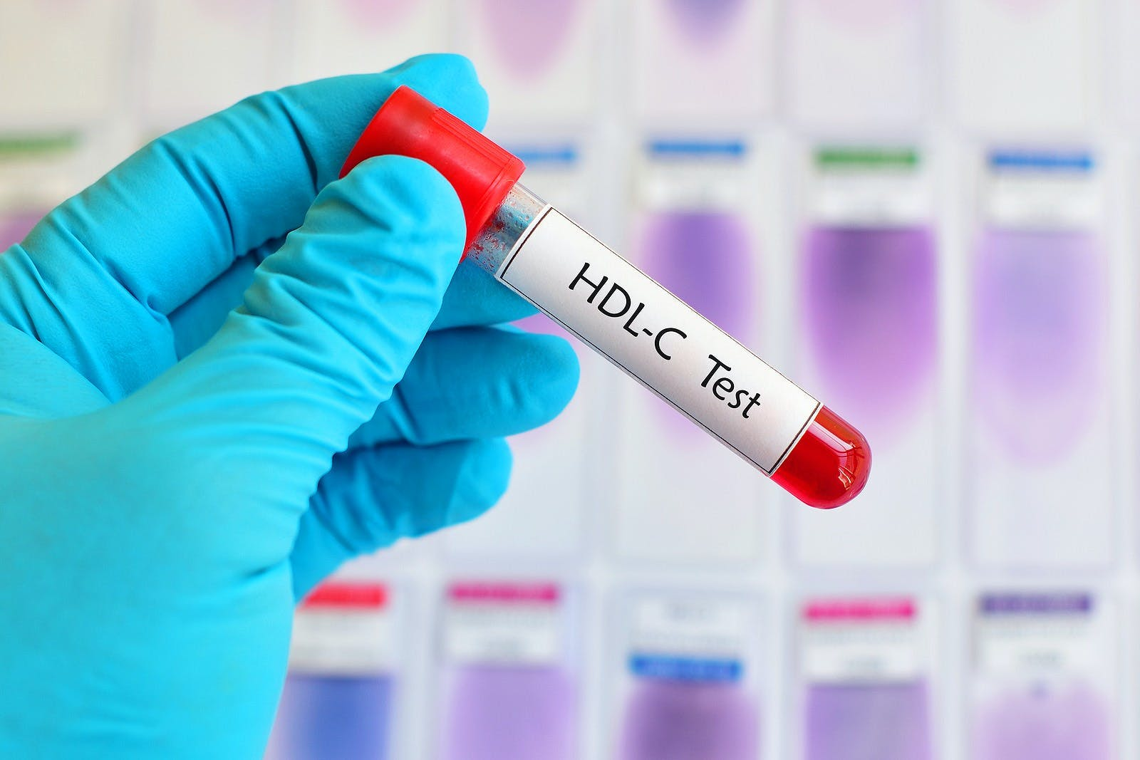 Blood sample for HDL (High-Density Lipoprotein cholesterol) test