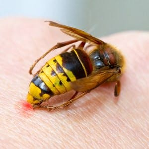 Hornet sting on human hand  of man