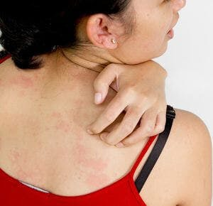 Young woman back with allergy skin problem