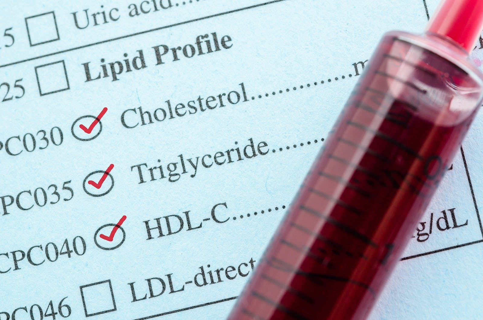 Lipid profile with cholesterol and tube of blood