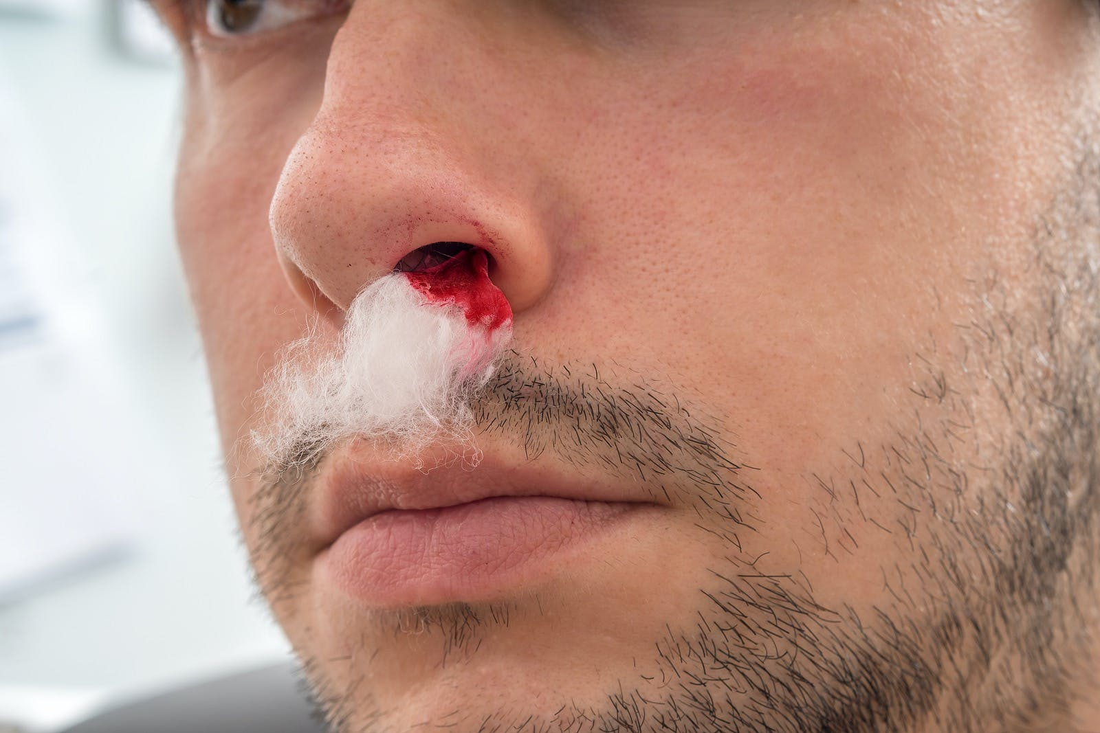 Man with bleeding nose and cotton in his nostril