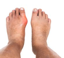Swollen joint in left foot; man seeks to ease joint pain