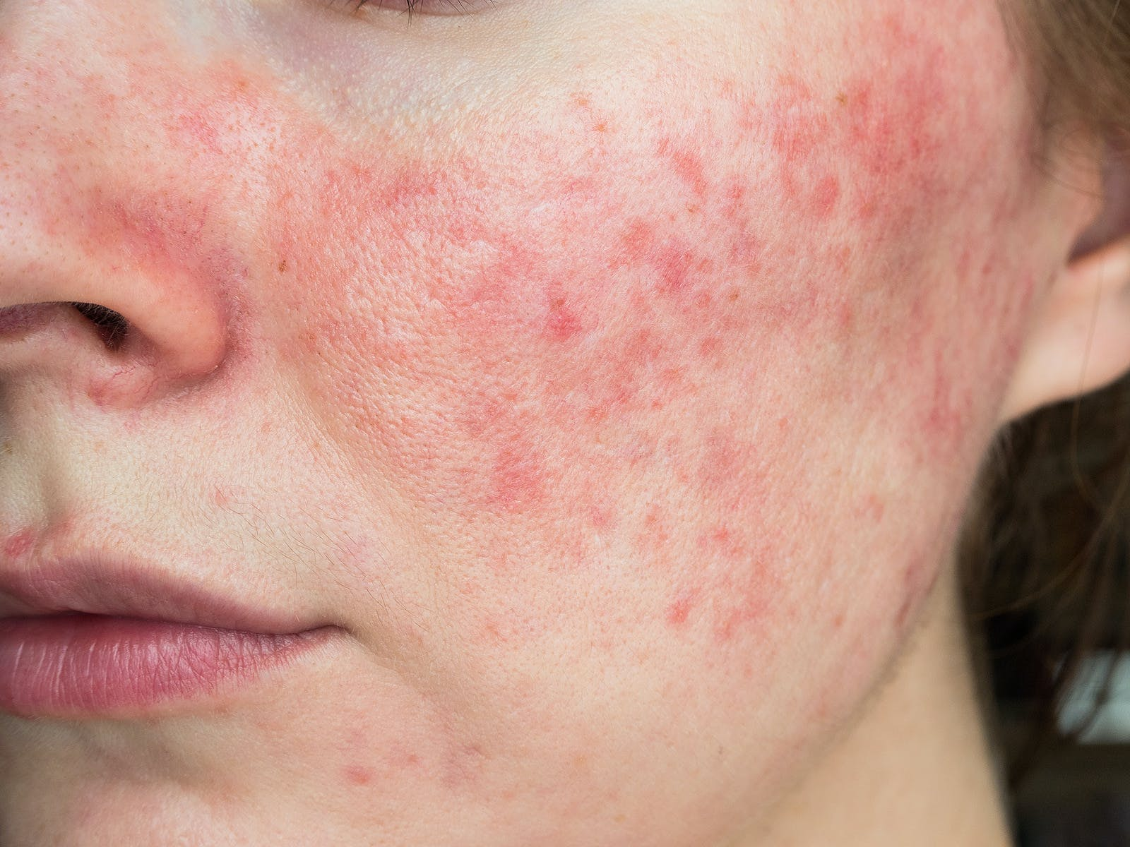 rosacea skin problem on woman's cheek