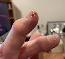 eczema on fingertips