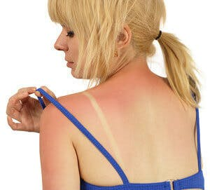 woman with a sunburn on her back