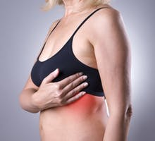 Woman holding her hand to her left breast, suffering from under breast rash