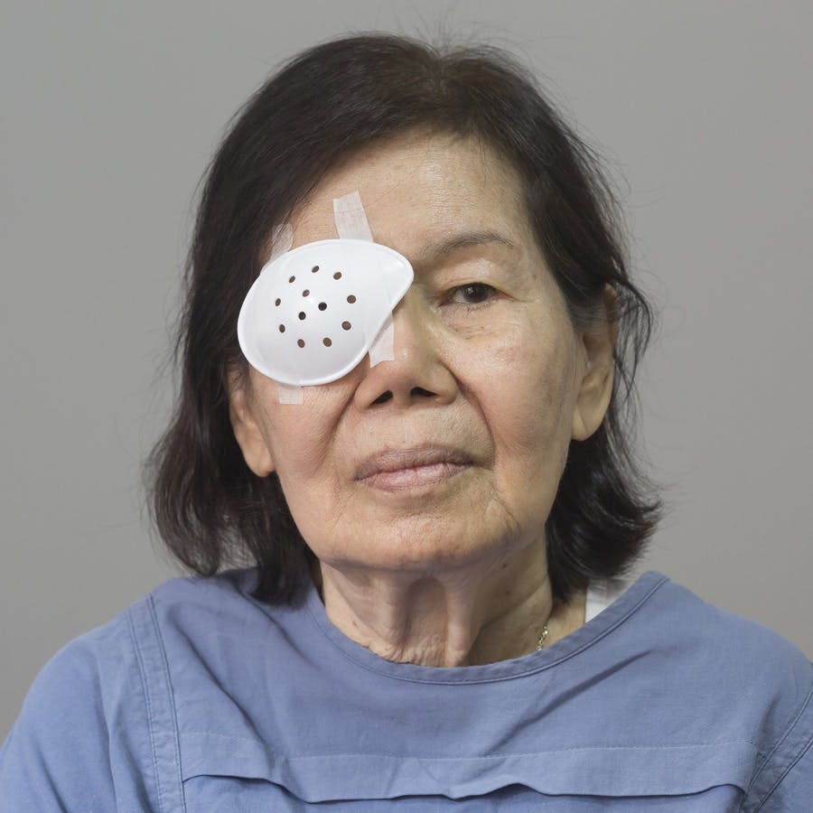 Eye shield covering after cataract surgery