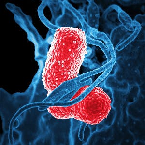 Cc0 from https://pixabay.com/en/bacteria-electron-microscope-811861/