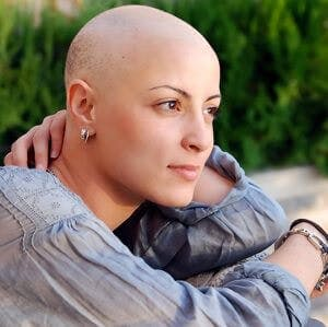 A female cancer patient with no hair,