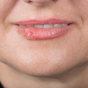 Lip infection with the herpes simplex virus