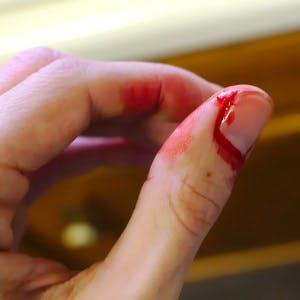 a cut finger bleeding