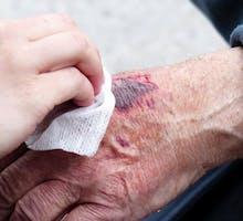 a cut on a hand