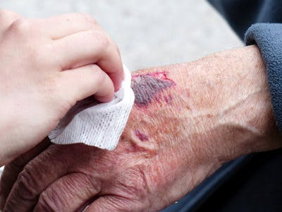 CC0 from https://pixabay.com/en/hand-injury-wound-blood-crack-357889/