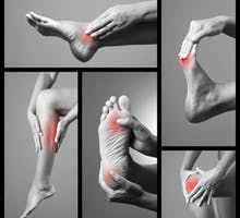 Photo illustration of various locations of leg and foot cramps, muscle cramp pain