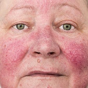 Close up of face with acne rosacea